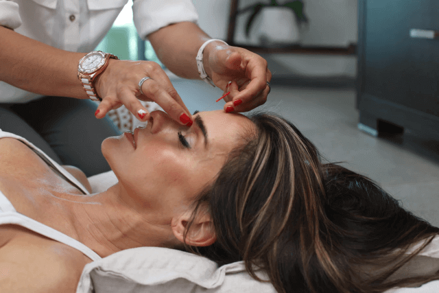 Facial Acupuncture's Ability to Improve Your Complexion
